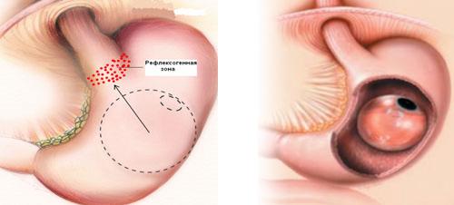 баллонирование желудка фото до и после либо