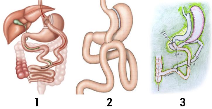 2 с диета для болезнью диабетиков желудка типа